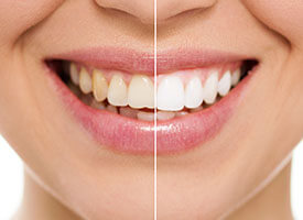 Teeth whitening (at-home)